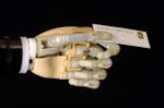 i-LIMB Hand from Touch Bionics Inc.