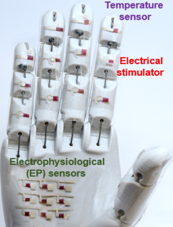 Medical Robotic Hand can Help Assess Vital Diagnostic Data