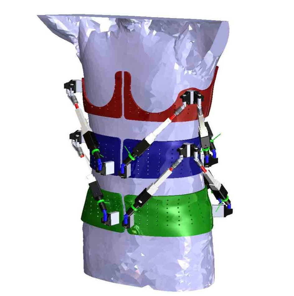 Innovative Robotic Spine Exoskeleton for Characterizing Spine Deformities