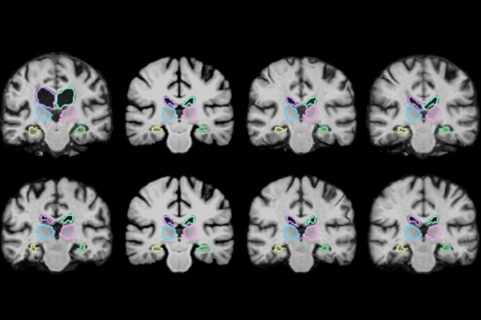 MIT Researchers Develop Machine-Learning Algorithm for Rapid Analysis of Medical Images