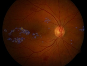 Artificial Intelligence Used to Support Instant Diagnosis of Diabetic Eye Disease