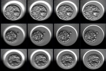 Researchers Develop Artificial Intelligence Approach to Improve Embryo Selection for In Vitro Fertilization