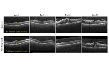 New Algorithm Could Enable Personalized Treatment for Diabetic Macular Edema