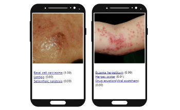 AI Algorithm Improves Diagnostic Accuracy of Skin Disorders